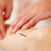 Logan College of Chiropractic Acupuncture