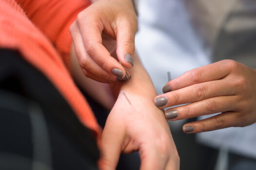 A DC student intern applies acupuncture needles to a patient's hand